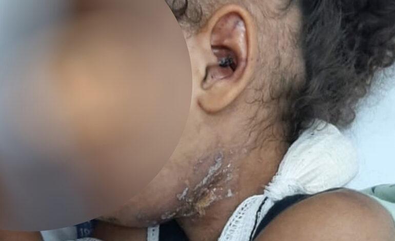 Pai e madrasta são presos suspeitos de espancar criança de 4 anos que perdeu a mãe para a Covid-19